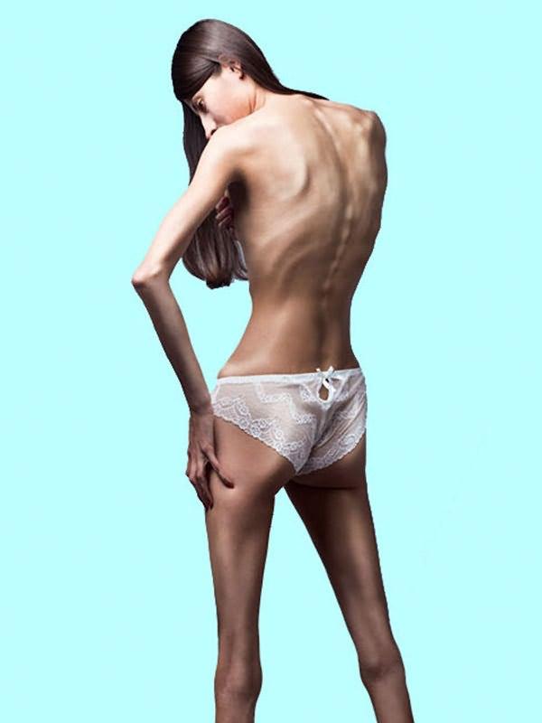 Tratamento de Anorexia Nervosa RJ | Psicologo Rio de Janeiro Rj | foto